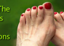 best-running-shoes-for-bunions